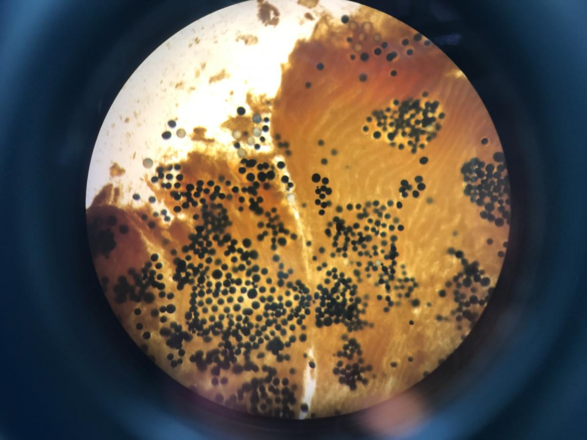 Perkinsus species cells in bivalve tissue under a microscope