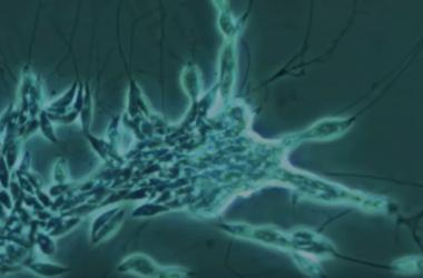 Screenshot of slime net colony, captured via video and microscope