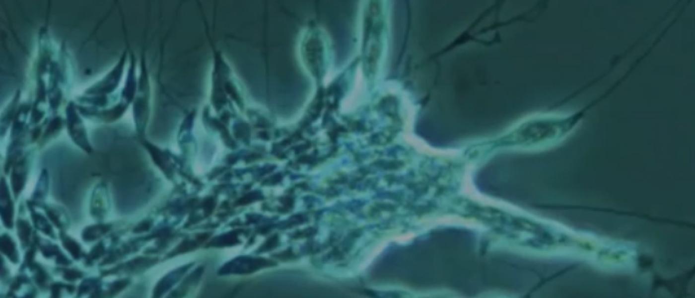 Microscopic screenshot of slime net colony
