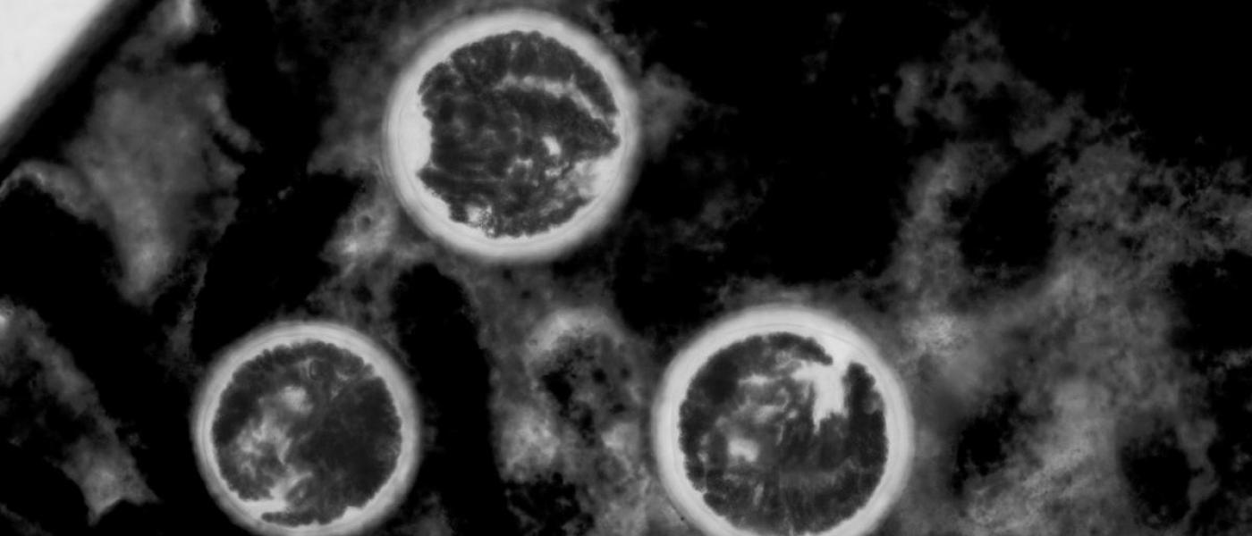 Microscopic view of trematode parasite